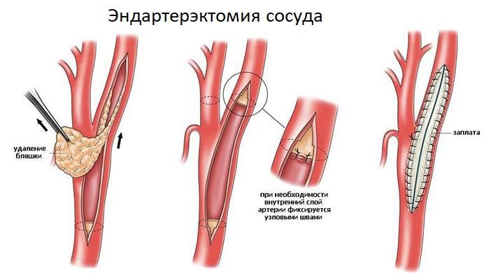 Эндартерэктомия почечной артерии
