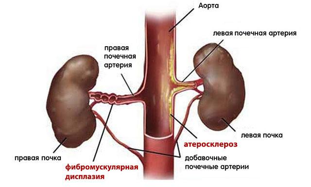 Атеросклероз почечной артерии