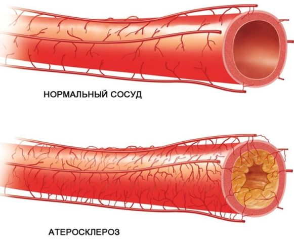 Атеросклероз кишечника: симптомы, лечение атеросклероза сосудов кишечника
