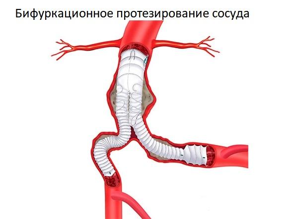 Бифуркационное протезирование сосуда