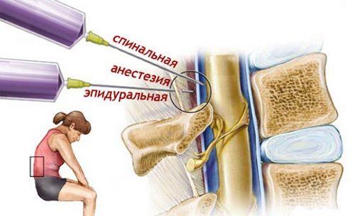 Эпидуральная анестезия при инфаркте