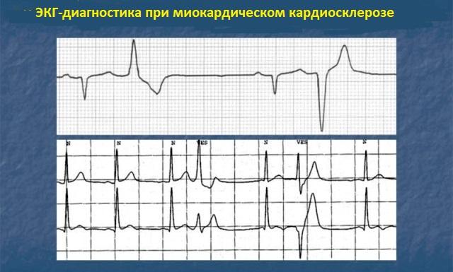 ЭКГ при миокардическом кардиосклерозе