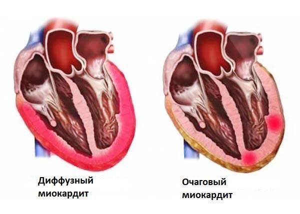 Виды миокардита
