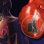 Постинфарктный кардиосклероз