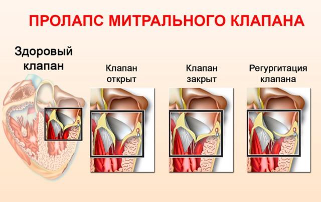 Пролапс и регургитация митрального клапана
