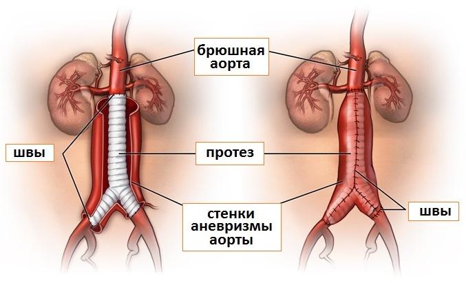 Резекция аневризмы брюшной аорты
