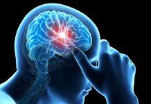 Транзиторная ишемическая атака