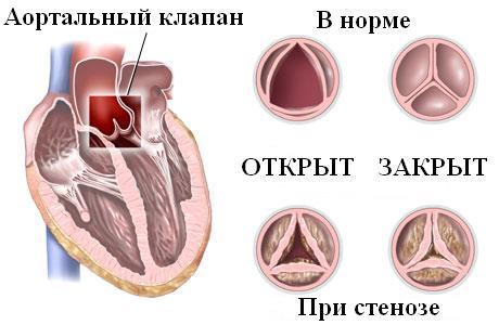 кальциноз створки клапана
