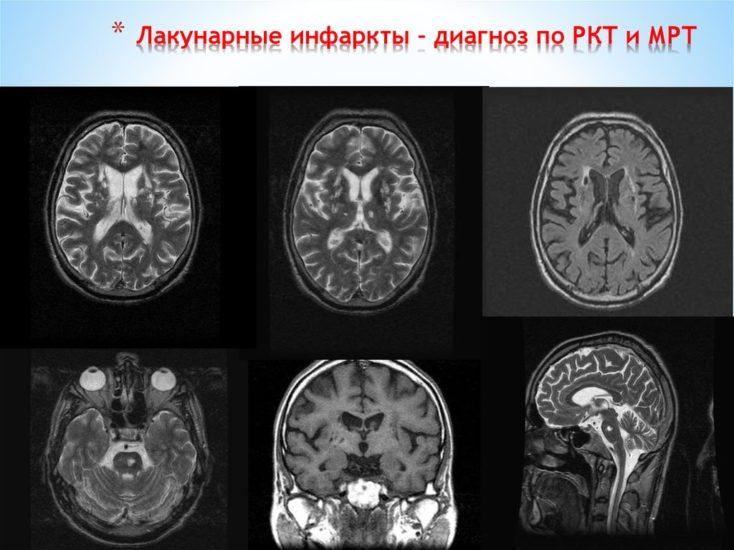 диагностика лакунарного инфаркта головного мозга