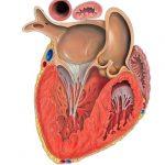 инфаркт правого желудочка