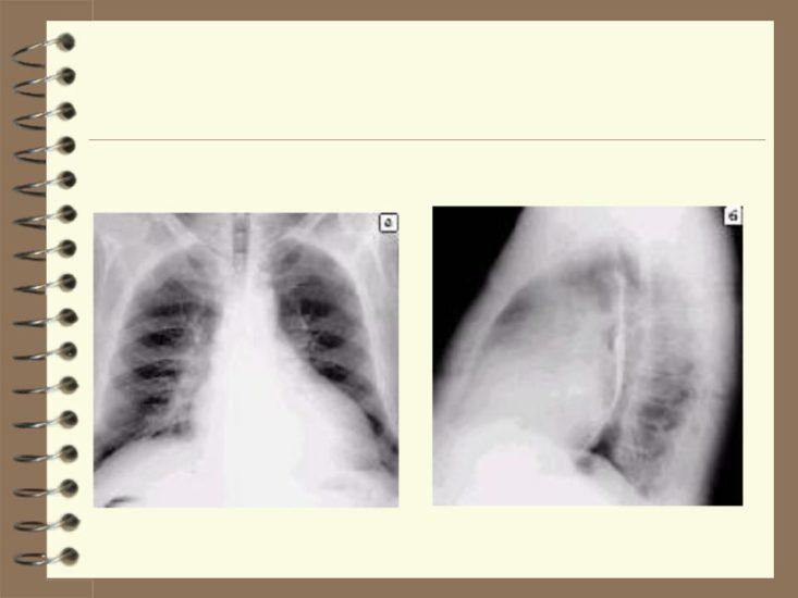 кардиомегалия на рентгене