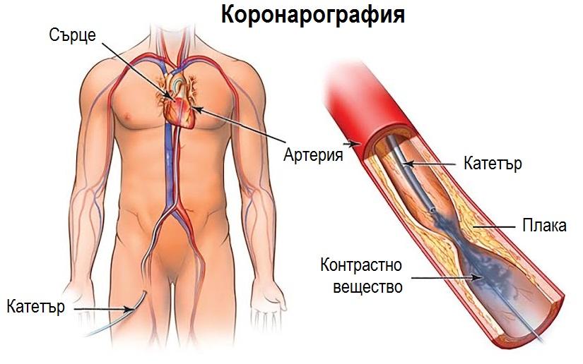 коронарография