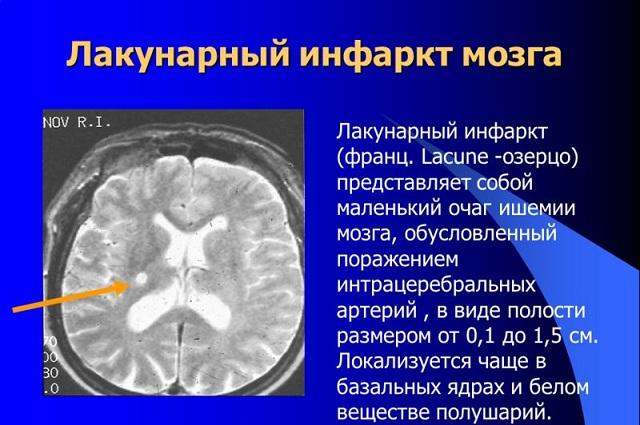 лакунарный инфаркт мозга фото
