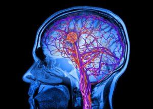 лакунарный инфаркт мозга