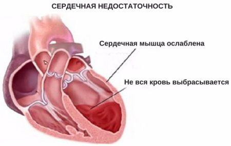 левожелудочковая сердечная недостатосность