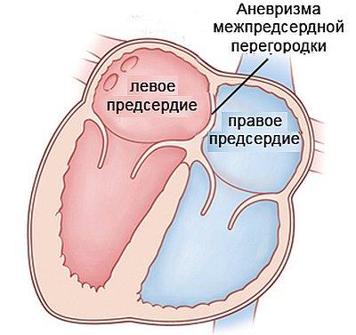 мпп сердца у детей