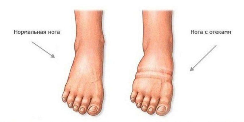 отеки ног при СН