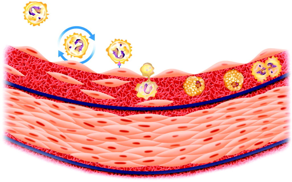 отложение холестерина в сосудах