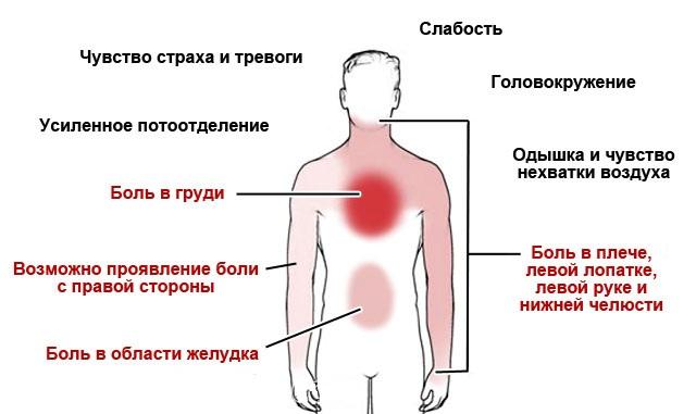 приступ стенокардии боли и локализация