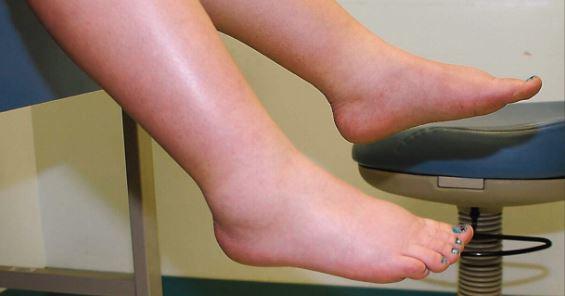 сильные отеки ног при СН