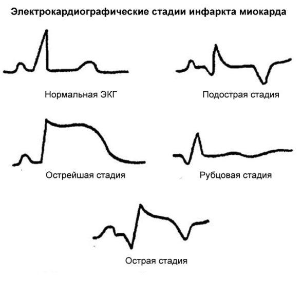 стадии инфаркта на экг