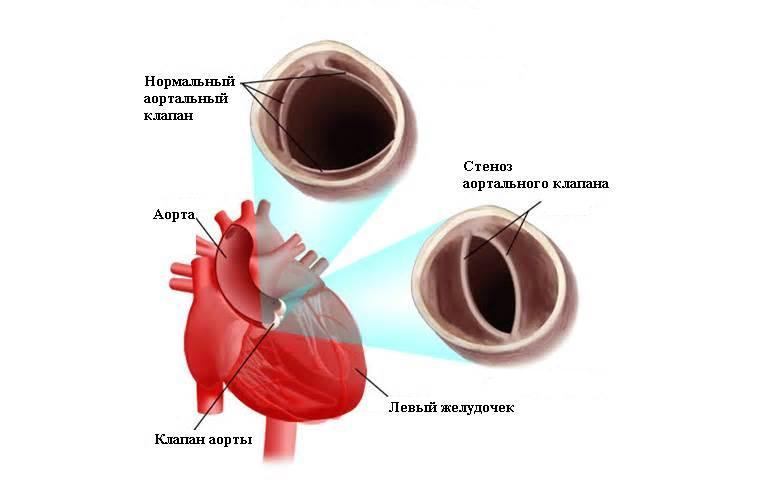 стеноз аортальный