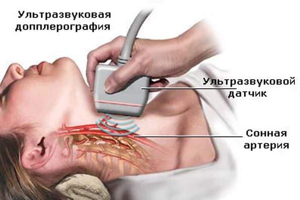 ультразвуковое дупплексное сканирование шейной артерии