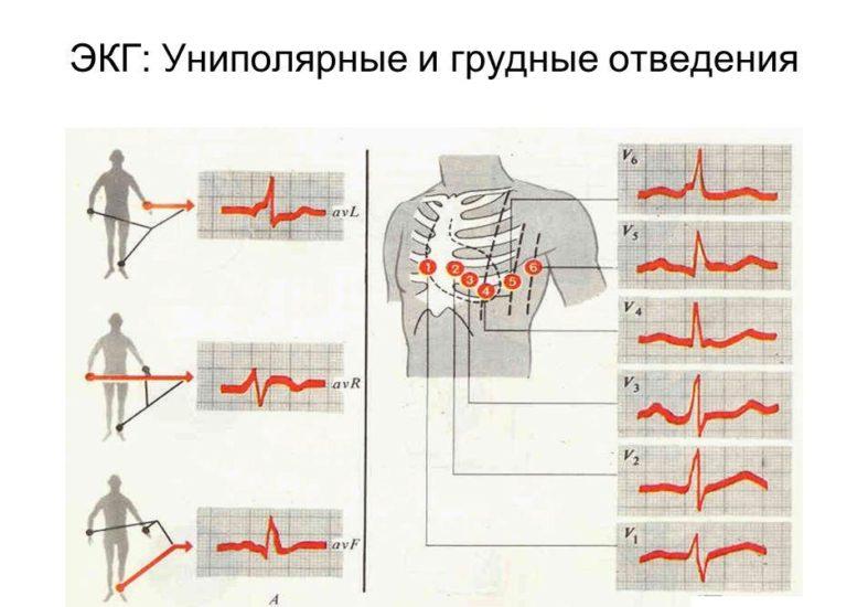 униполярные и грудные отделы ЭКГ