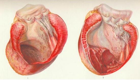 фото аневризмы сердца