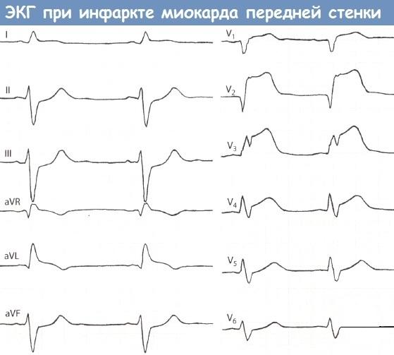 экг инфаркта миокарда передней стенки
