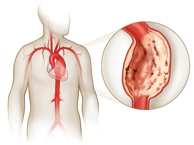 Аневризма сердца после инфаркта