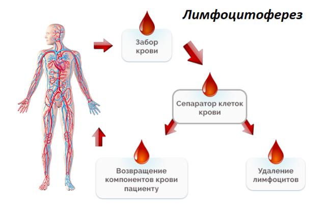 Лимфоцитоферез
