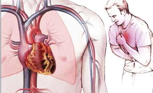 Одышка после стентирования сосудов сердца