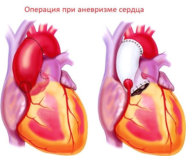 Операция при аневризме сердца