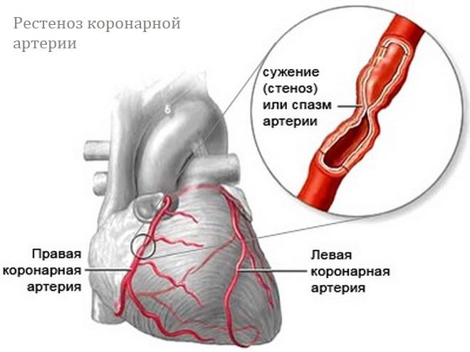 Рестеноз коронарной артерии