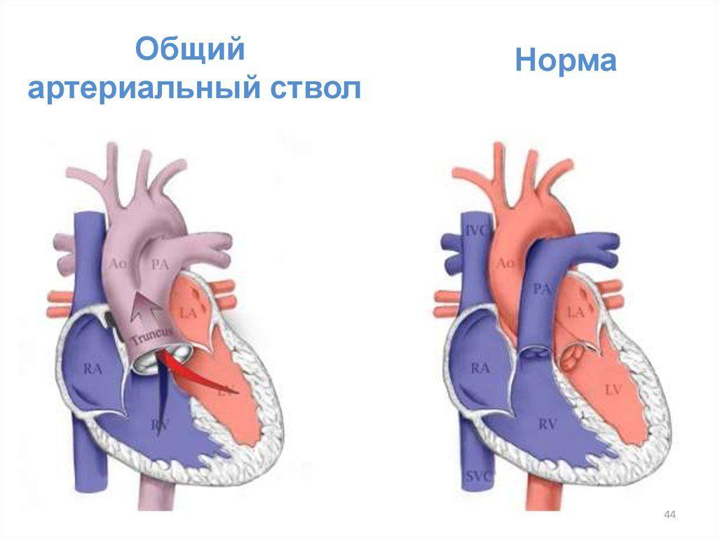 общий артериальный ствол-1