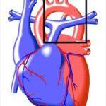 Открытый артериальный проток