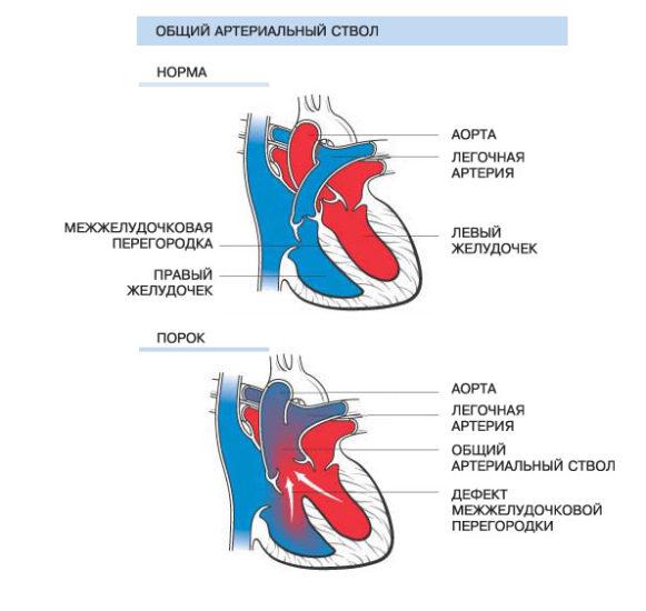 ПС общий артериальный ствол