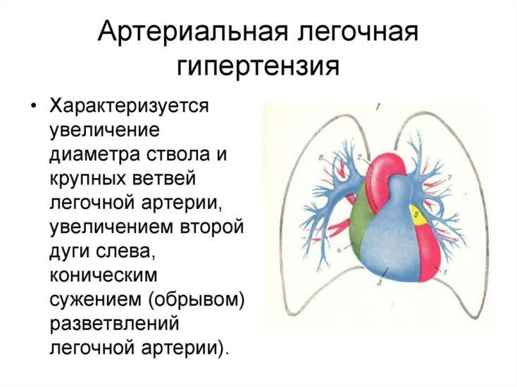 артериальная легочная гипертензия