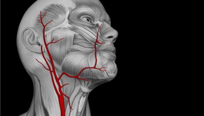 гипоплазия сонной артерии
