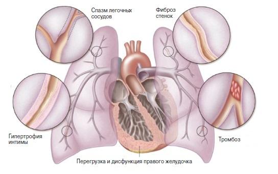 диагностика легочной гипертензии