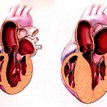 дилатация сердца