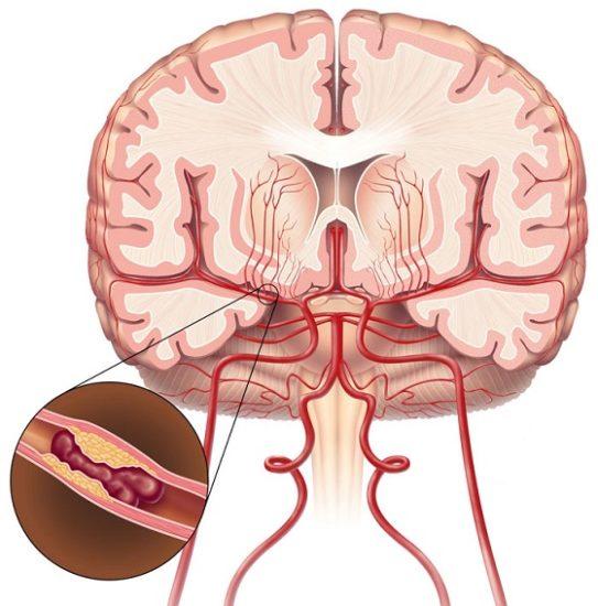 ишемический инсульт головного мозга (тромб)