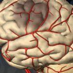 ишемия головного мозга у новорожденных