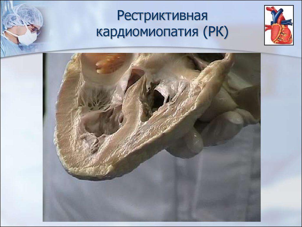 кардиомиопатия рестриктивная