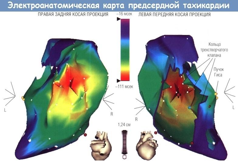 картирование сердца при аритмии