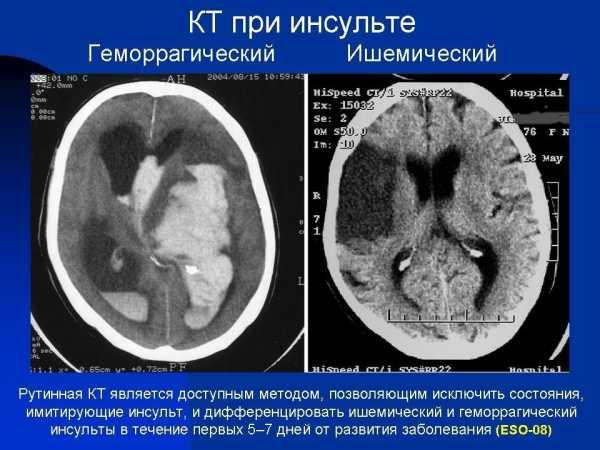 кт при инсульте геморрагическом и ишемическом