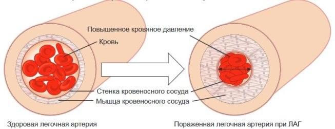 легочная артерия при ЛАГ