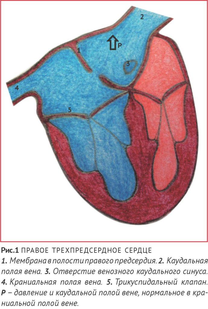 правое трехпредсердное сердце