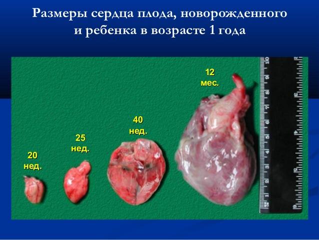 размеры сердца до года